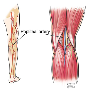 popliteal-artery-entrapment-syndrome-1