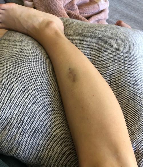scar shot