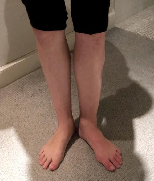 Leg - Swelling 1